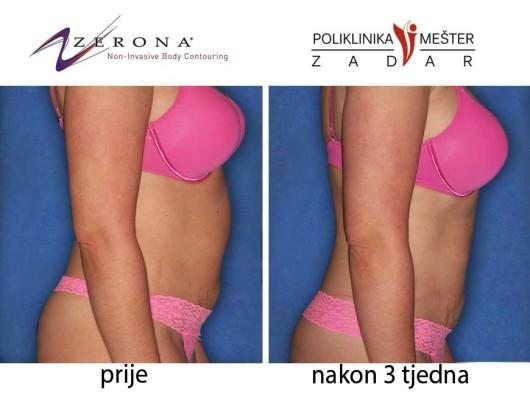 prije-i-poslije-zerona1